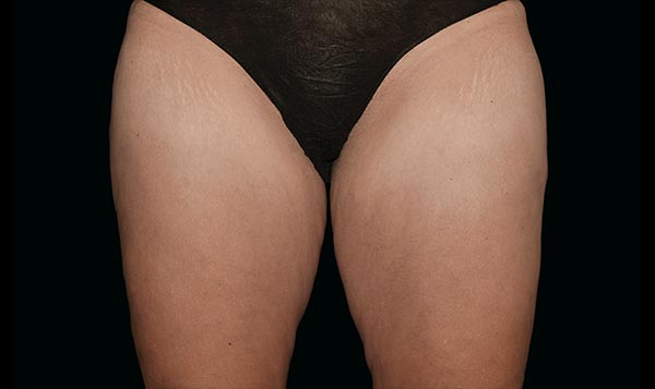 inner-thighs-after